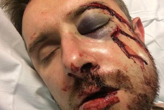 Horrendous Clash ! Fractured Nose & Broken Jaw 1